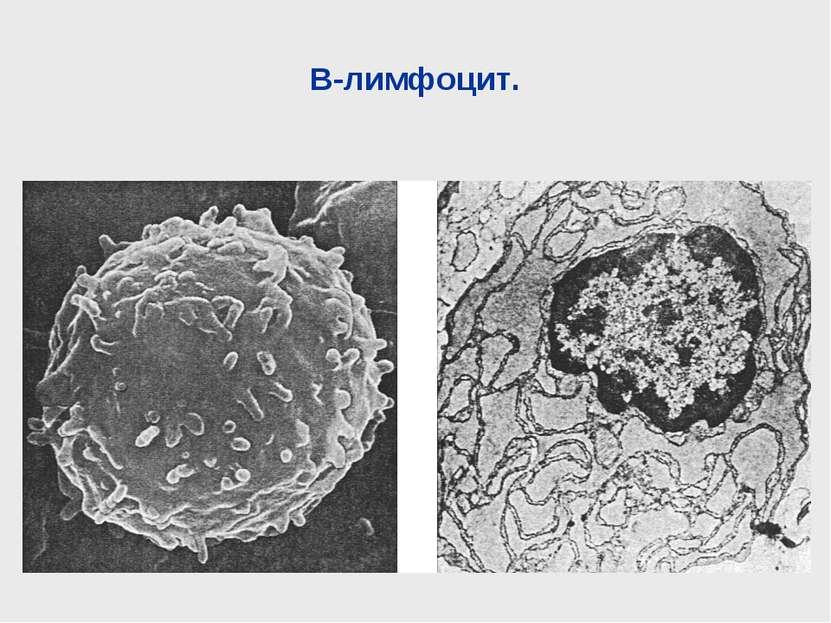 В-лимфоцит.
