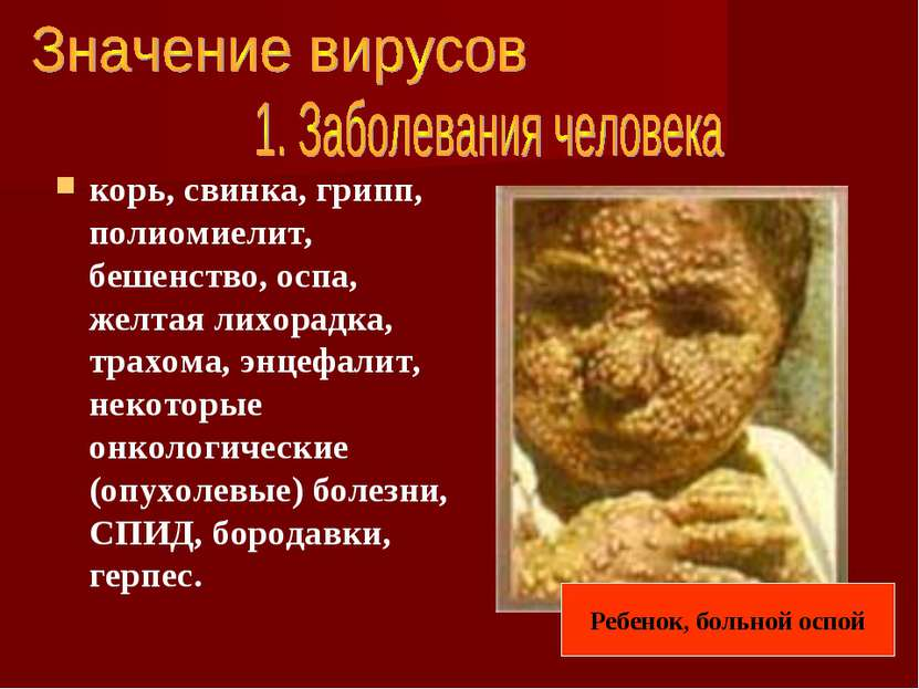 корь, свинка, грипп, полиомиелит, бешенство, оспа, желтая лихорадка, трахома,...