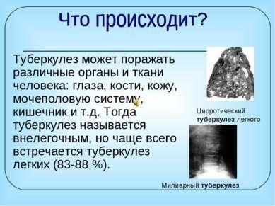 Туберкулез может поражать различные органы иткани человека: глаза, кости, ко...