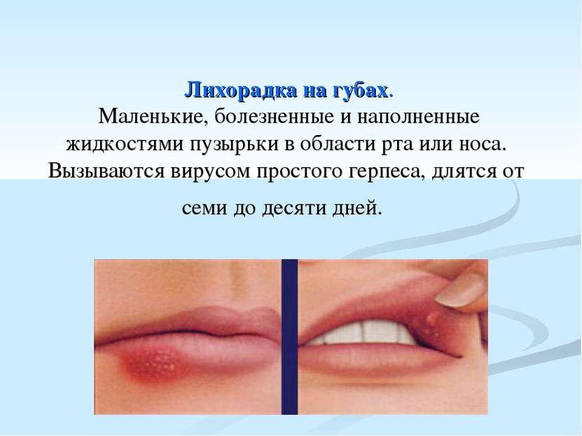 Лихорадка на губах. Маленькие, болезненные и наполненные жидкостями пузырьки...