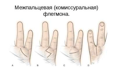 Межпальцевая (комиссуральная) флегмона.