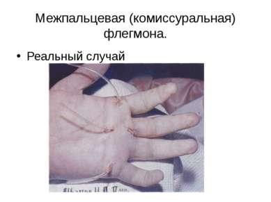 Межпальцевая (комиссуральная) флегмона. Реальный случай