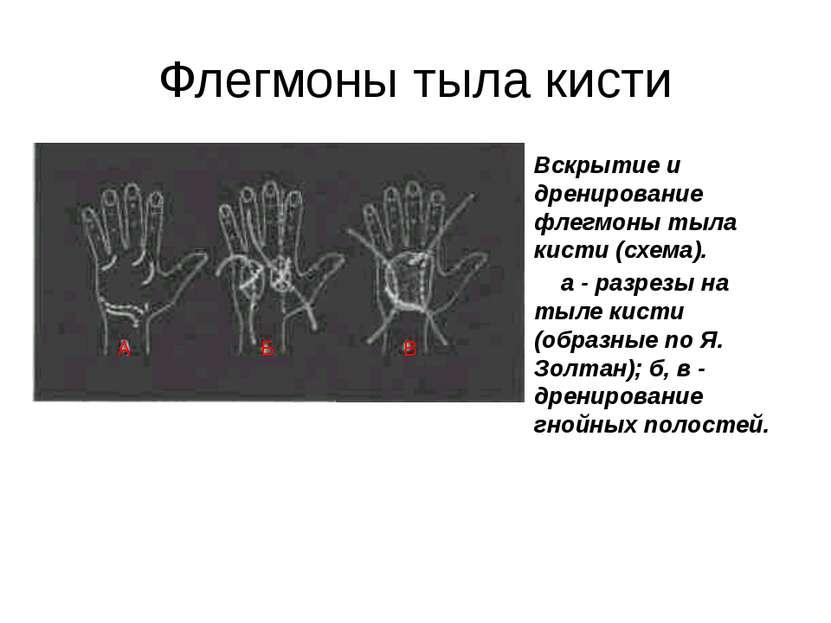 Флегмоны тыла кисти Вскрытие и дренирование флегмоны тыла кисти (схема). а - ...