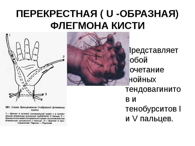 ПЕРЕКРЕСТНАЯ ( U -ОБРАЗНАЯ) ФЛЕГМОНА КИСТИ Представляет собой сочетание гнойн...