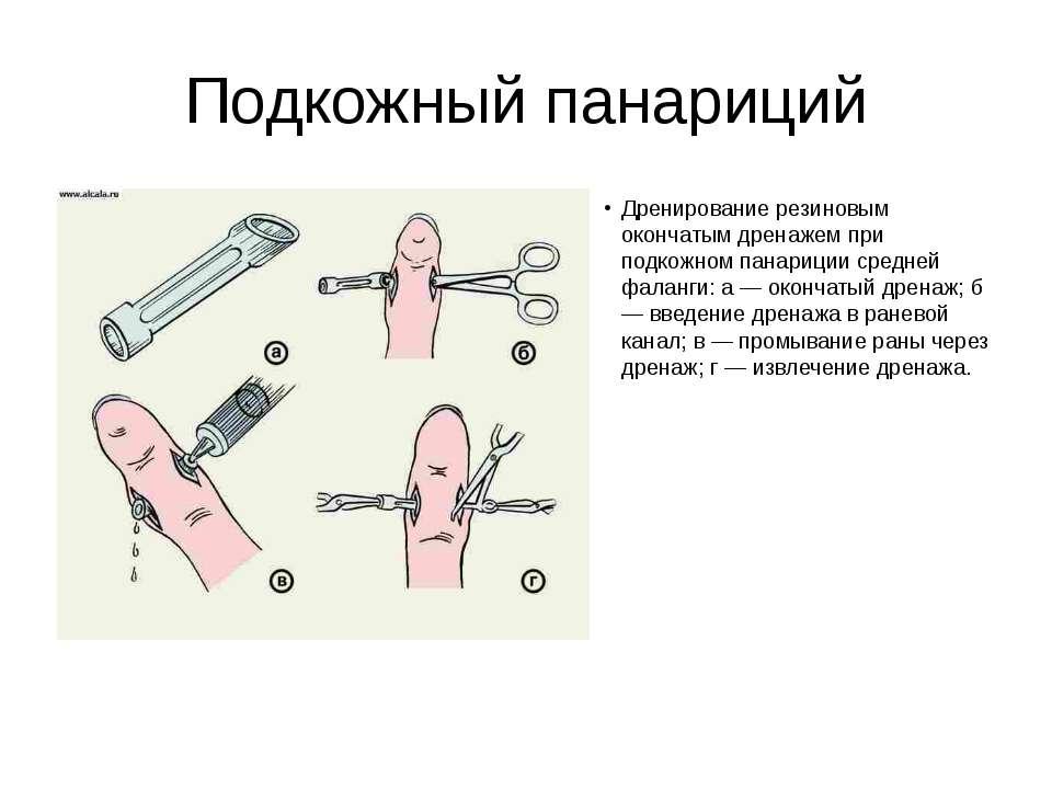 Подкожный панариций Дренирование резиновым окончатым дренажем при подкожном п...