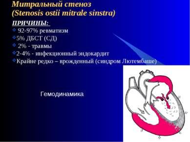 Митральный стеноз (Stenosis ostii mitrale sinstra) ПРИЧИНЫ: 92-97% ревматизм ...