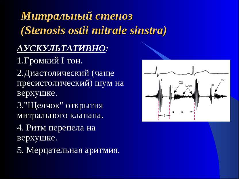 Митральный стеноз (Stenosis ostii mitrale sinstra) АУСКУЛЬТАТИВНО: 1.Громкий ...