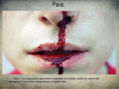 Рана. Рана — это нарушение целостности покровов тела (кожи, слизистых оболоче...