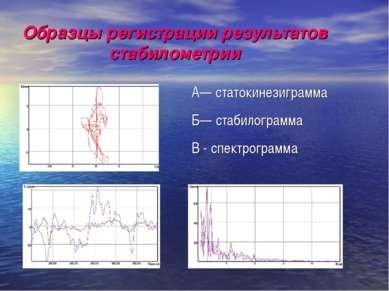 Образцы регистрации результатов стабилометрии