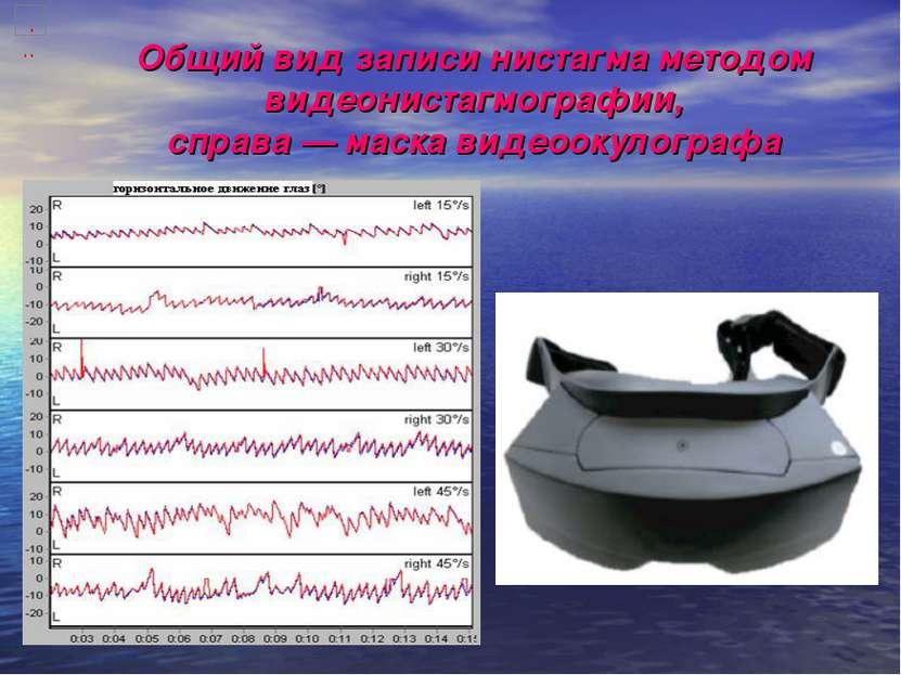 Общий вид записи нистагма методом видеонистагмографии, справа — маска видеоок...