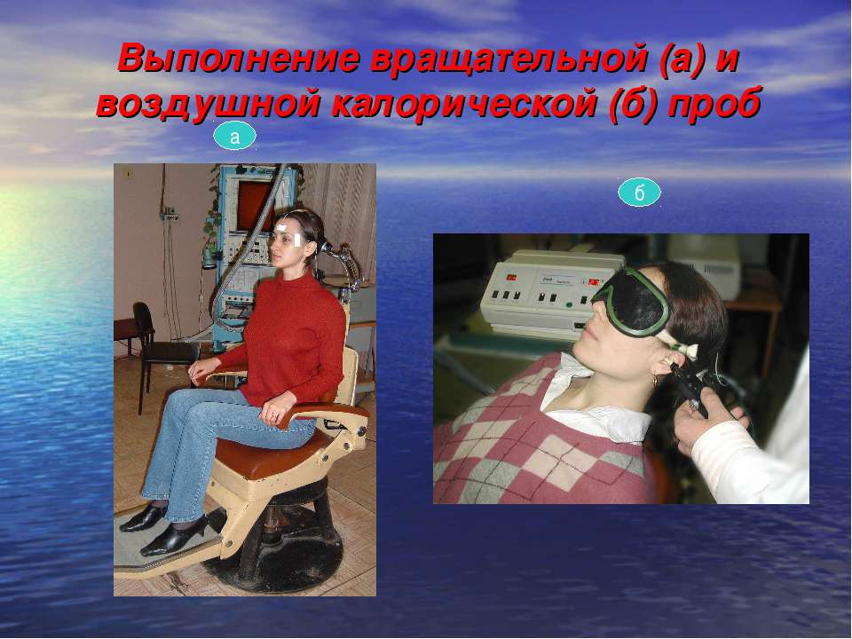 Выполнение вращательной (а) и воздушной калорической (б) проб а б
