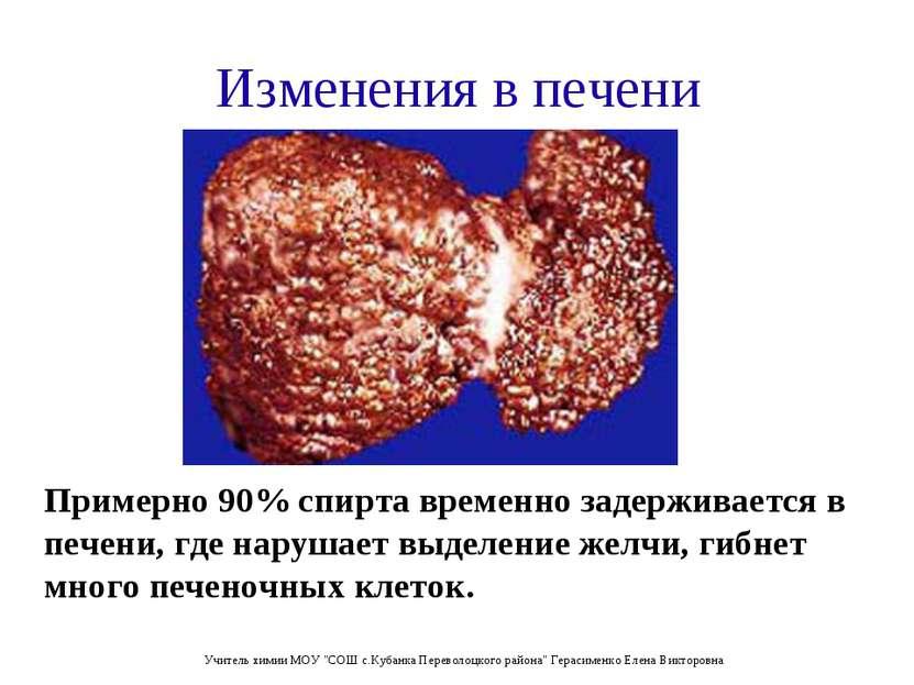 Изменения в печени Примерно 90% спирта временно задерживается в печени, где н...