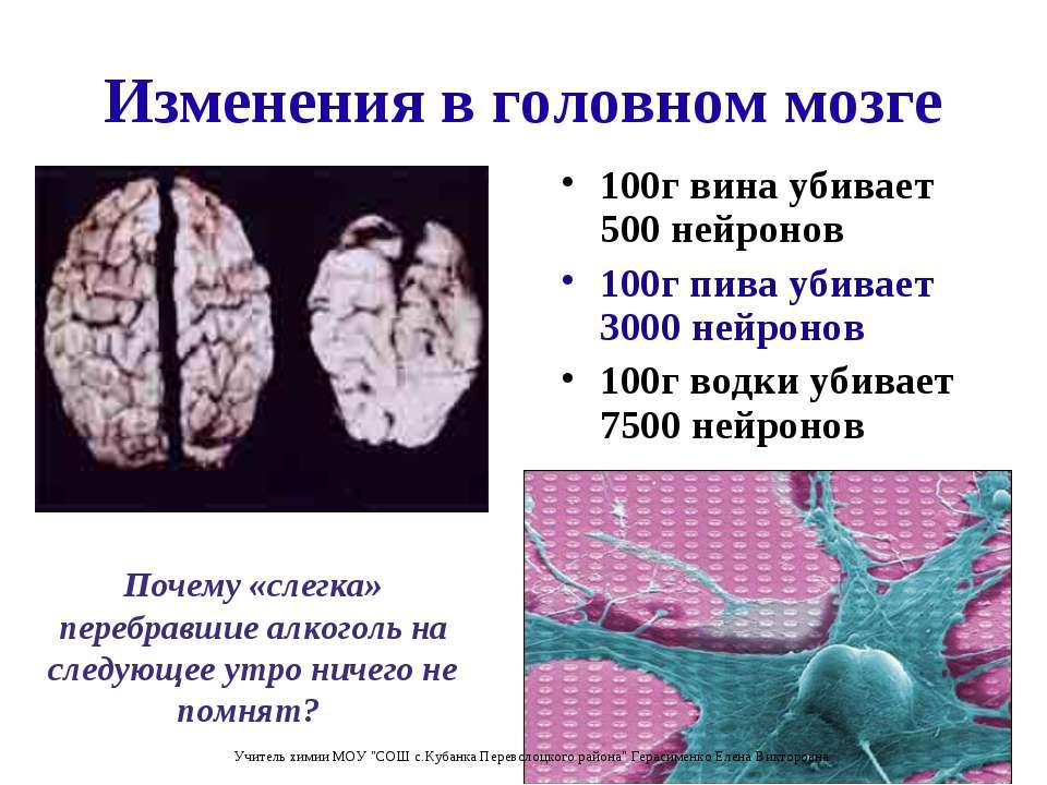 Изменения в головном мозге 100г вина убивает 500 нейронов 100г пива убивает 3...