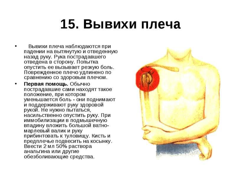 15. Вывихи плеча  Вывихи плеча наблюдаются при падении на вытянутую и отвед...