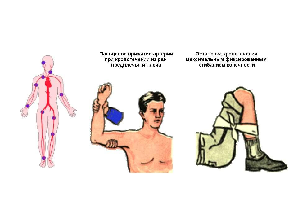 Пальцевое прижатие артерии при кровотечении из ран предплечья и плеча Останов...