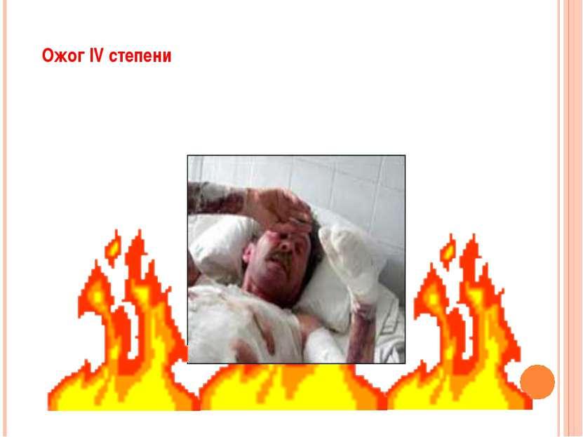 Ожог IV степени - омертвение не только кожи,но и подлежащих тканей - сухожил...
