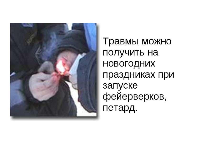 Травмы можно получить на новогодних праздниках при запуске фейерверков, петард.