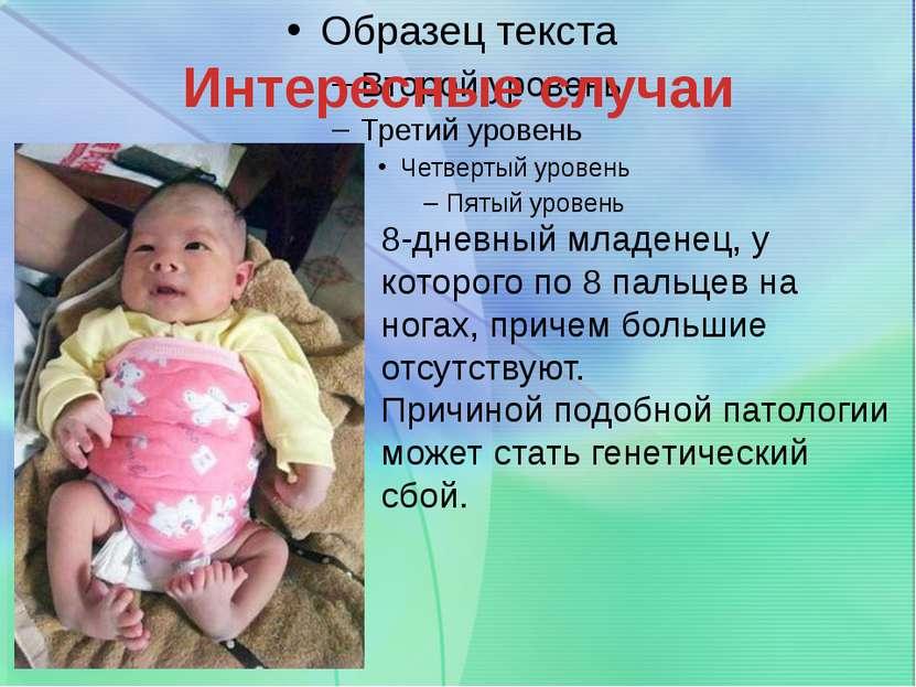 Интересные случаи 8-дневный младенец, у которого по 8 пальцев на ногах, приче...