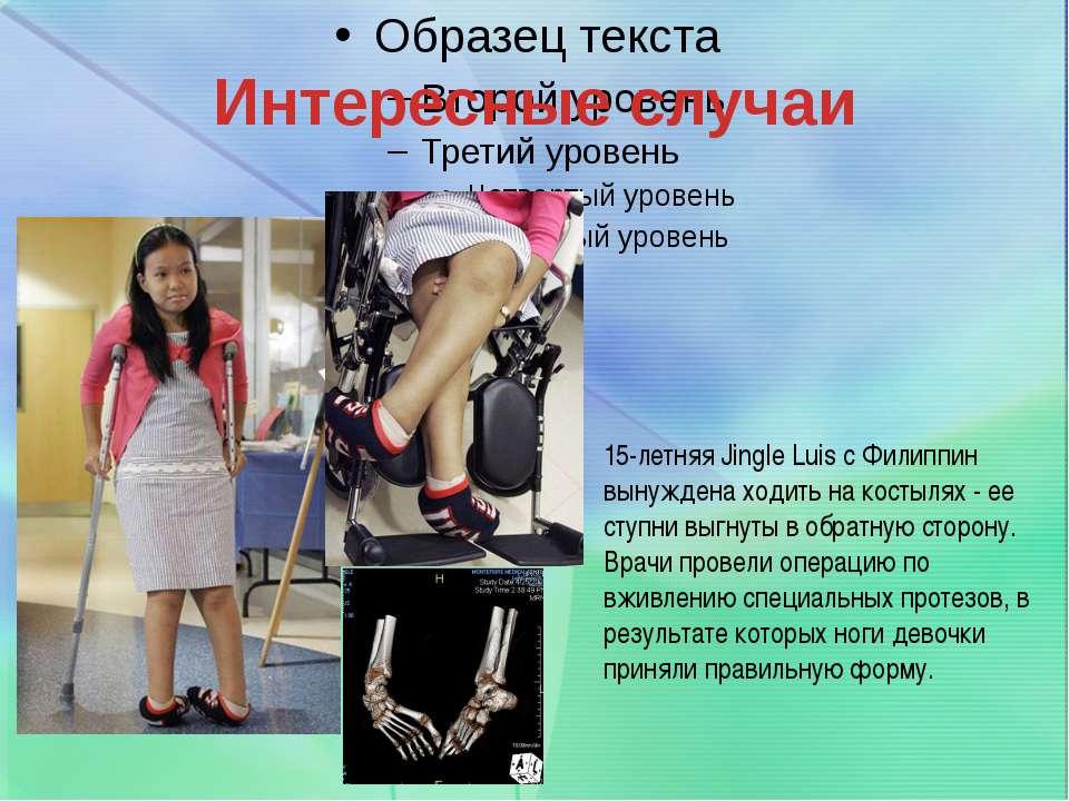 Интересные случаи 15-летняя Jingle Luis с Филиппин вынуждена ходить на костыл...