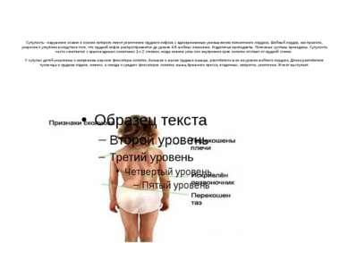 Сутулость - нарушение осанки в основе которого лежит увеличение грудного кифо...
