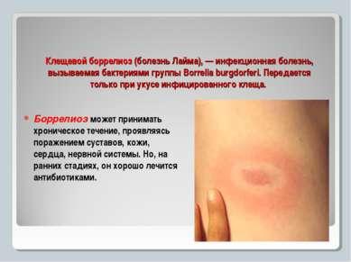 Клещевой боррелиоз (болезнь Лайма), — инфекционная болезнь, вызываемая бактер...