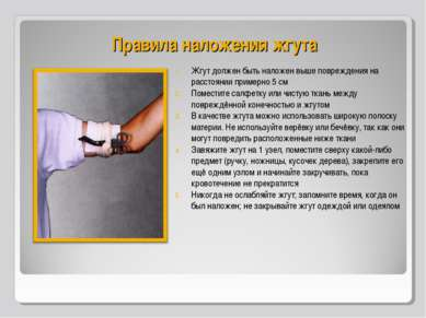 Правила наложения жгута Жгут должен быть наложен выше повреждения на расстоян...
