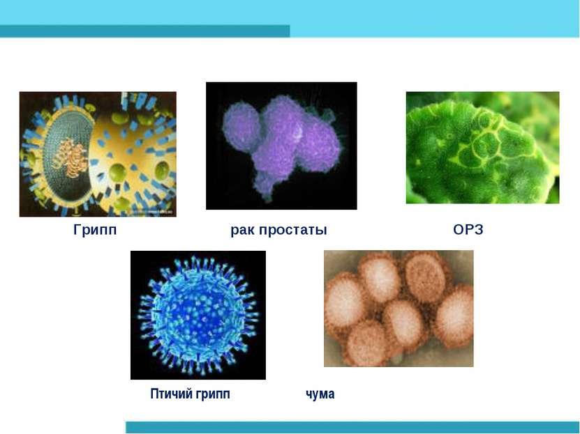 Грипп рак простаты ОРЗ Птичий грипп чума
