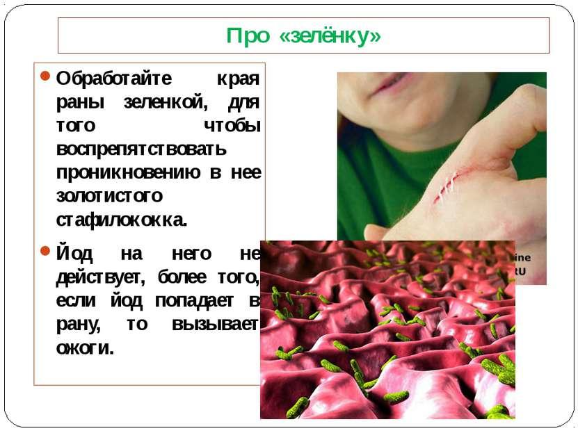 Про «зелёнку» Обработайте края раны зеленкой, для того чтобы воспрепятствоват...