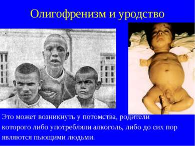 Олигофренизм и уродство Это может возникнуть у потомства, родители которого л...