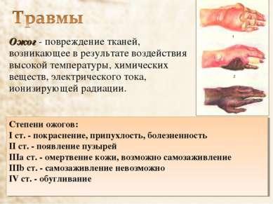 Ожог - повреждение тканей, возникающее в результате воздействия высокой темпе...