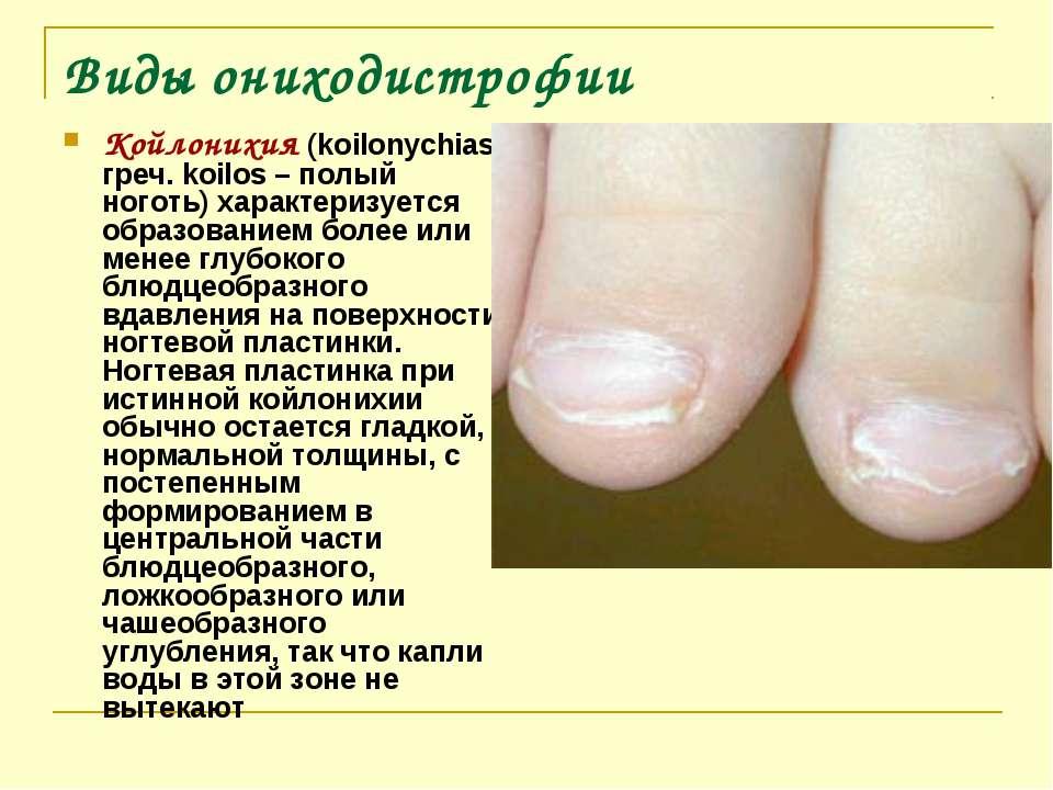 Виды ониходистрофии Койлонихия (koilonychias; греч. koilos – полый ноготь) ха...