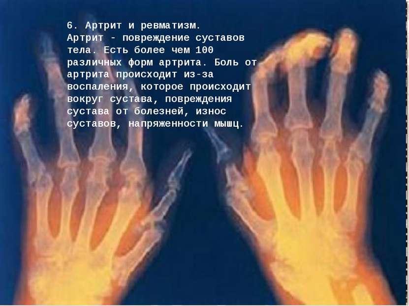 6. Артрит и ревматизм. Артрит - повреждение суставов тела. Есть более чем 100...