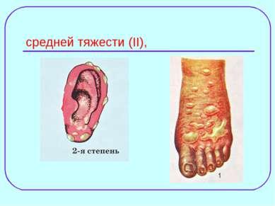 средней тяжести (II),