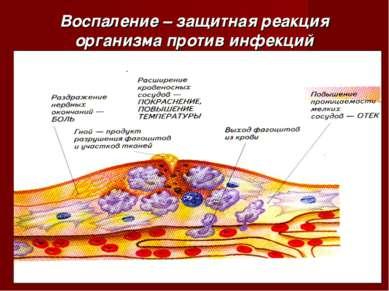 Воспаление – защитная реакция организма против инфекций