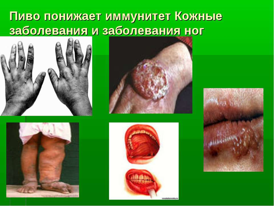Пиво понижает иммунитет Кожные заболевания и заболевания ног