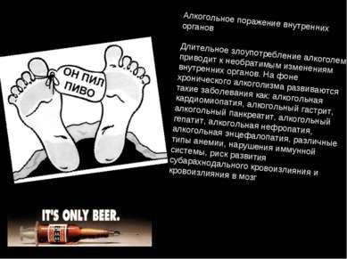 Алкогольное поражение внутренних органов Длительное злоупотребление алкоголем...