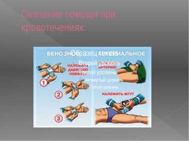 Оказание помощи при кровотечениях: