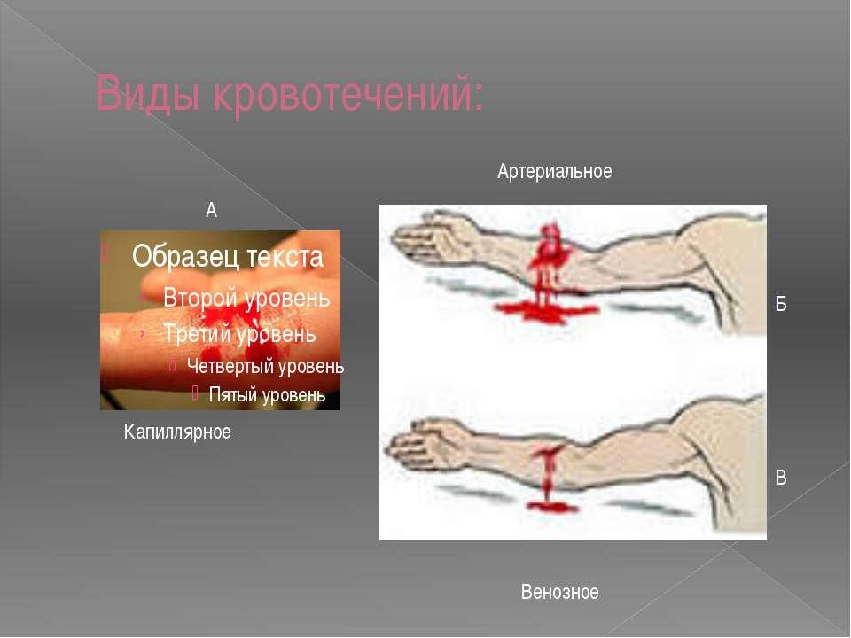 Виды кровотечений: Капиллярное А Артериальное Б Венозное В