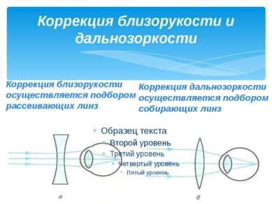 Коррекция близорукости и дальнозоркости Коррекция близорукости осуществляется...