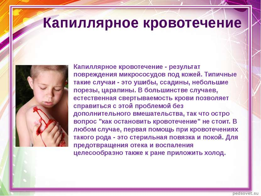Капиллярное кровотечение Капиллярное кровотечение - результат повреждения мик...