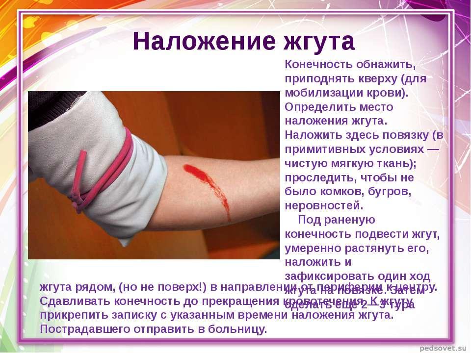 Наложение жгута Конечность обнажить, приподнять кверху (для мобилизации крови...