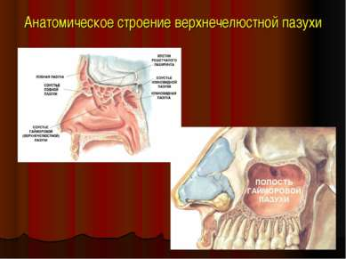 Анатомическое строение верхнечелюстной пазухи