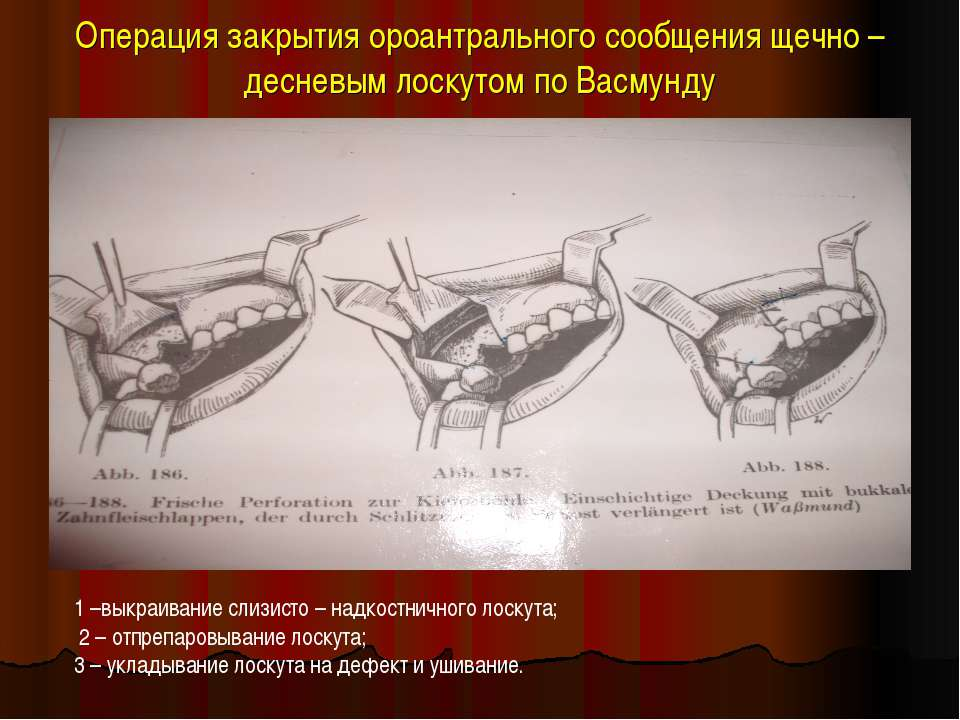 Операция закрытия ороантрального сообщения щечно –десневым лоскутом по Васмун...