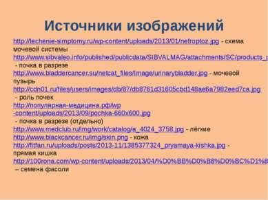 Источники изображений http://lechenie-simptomy.ru/wp-content/uploads/2013/01/...