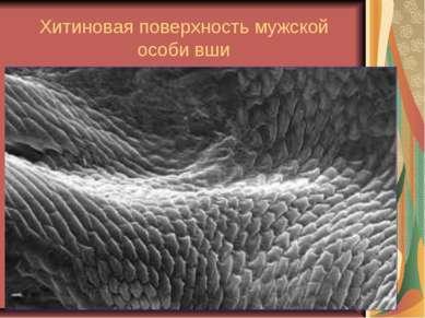 Хитиновая поверхность мужской особи вши