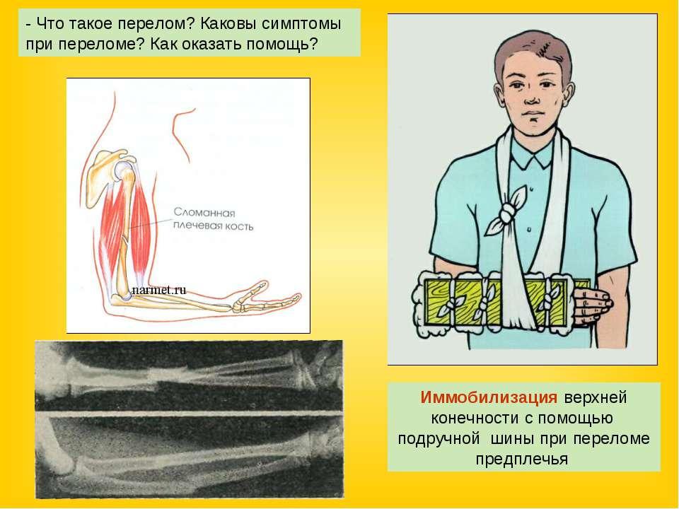 Иммобилизация верхней конечности с помощью подручной шины при переломе предпл...