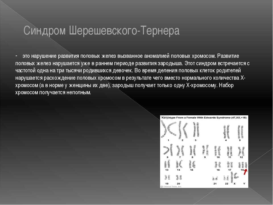 Синдром Шерешевского-Тернера - это нарушение развития половых желез вызванное...