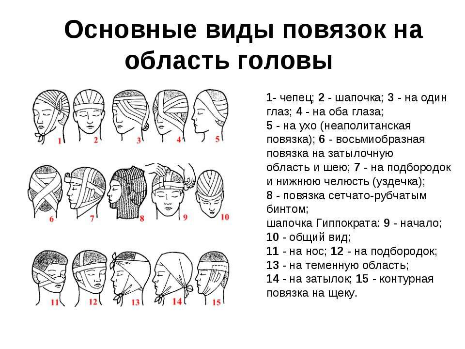 Основные виды повязок на область головы 1- чепец; 2 - шапочка; 3 - на один...