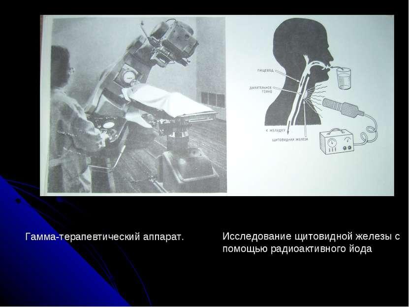 Гамма-терапевтический аппарат. Исследование щитовидной железы с помощью радио...