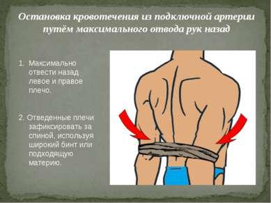Остановка кровотечения из подключной артерии путём максимального отвода рук н...